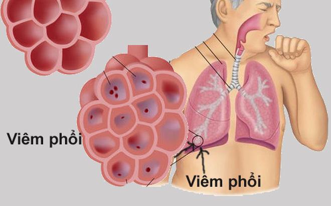 Bệnh viêm phổi không sốt có nguy hiểm không?