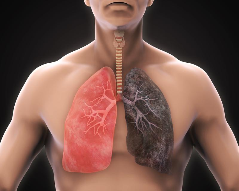 Chăm sóc bệnh nhân viêm phổi không sốt